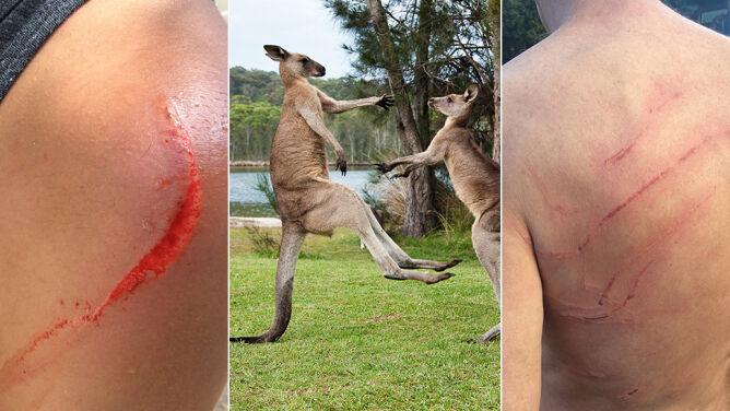 Kangury atakują ludzi, bo ci dokarmiają je fast foodem